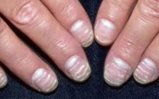 На ногтях белые полоски – что это?