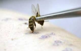 Апитерапия в домашних условиях точки ужаливания схема, терапия пчелами