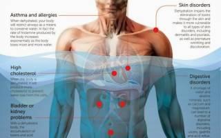 Признаки обезвоживания организма у взрослого человека: симптомы обезвоженности