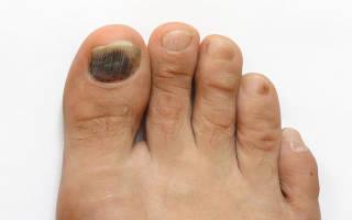 Коричневые пятна на ногтях: темная полоска на ногте руки