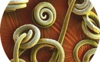 Как понять что есть глисты у взрослого – гельминты как определить