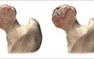 Асептический некроз головки бедренной кости лечение, ангбк симптомы