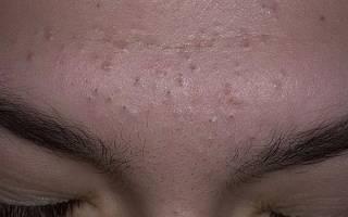 Откуда появляются черные точки на лице?