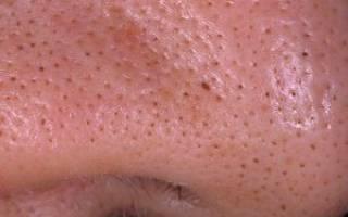 Как убрать черные точки и прыщи: как выдавить угри на носу?