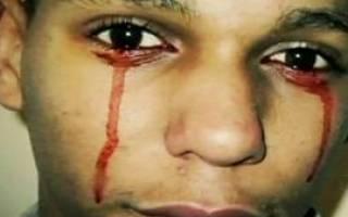 К чему снится кровь из глаз – сонник стрелки на глазах