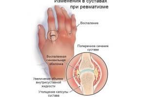 Что такое ревматизм суставов симптомы и лечение?