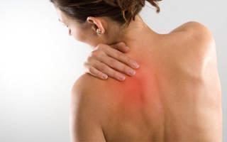 Миозит мышц спины лечение в домашних условиях