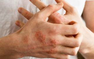Лечение дисгидроза на руках мазь, дисгидротическая экзема кистей фото