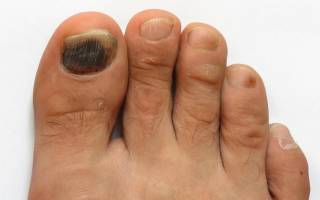 Потемнели ногти на больших пальцев ног почему: темные пятна на ногтях рук
