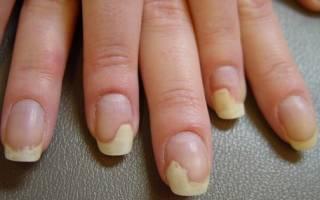 Онихолизис после гель лака почему: как лечить отслоение ногтя от ногтевого ложа?