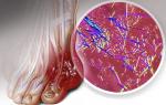Как снизить мочевую кислоту в организме, mochevaya kislota