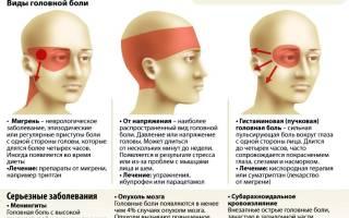 Головные боли в затылке причины и лечение