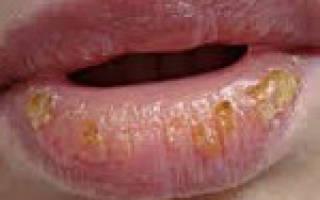 Эксфолиативный хейлит, шершавость на губе