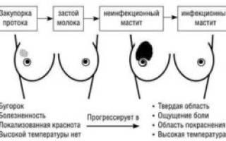 Как перевязать грудные железы для предотвращения лактации, сколько дней ходить с перетянутой грудью?
