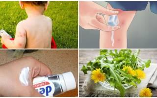 Мазь от укусов Комаров для детей: чем помазать ребенку?