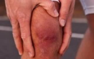 Хондромаляция надколенника, что это такое – хондроз коленного сустава лечение