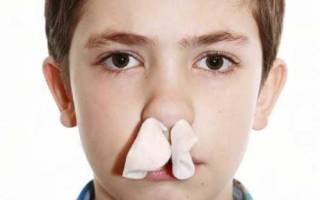 Кровь из носа у ребенка что делать, остановка носового кровотечения у детей