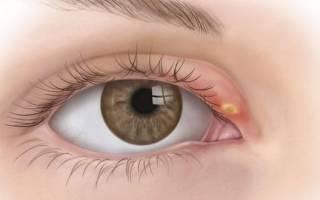 Что делать когда ячмень на глазу – как быстро вылечить писяк?
