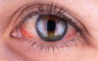 Белки глаз с красными прожилками причины – как избавиться от капилляров в глазах