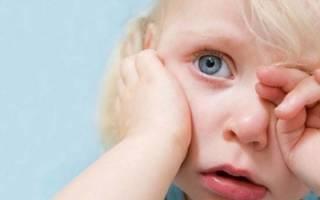 Лишай на ноге у ребенка, причины лишая у детей