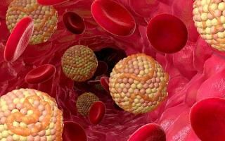 Причины высокого холестерина у женщин после 50, лпвп норма у мужчин после 50