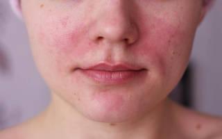 Кожа лица краснеет и шелушится что делать, как быстро убрать шелушение?