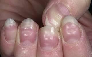 Деформация ногтей на руках причины, искривление ногтевой пластины