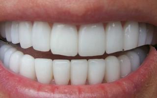 Неправильный прикус до и после – как выровнять челюсть?